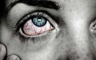 Глаз гноится и красный что делать