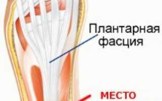 Шпора на пятке симптомы и лечение