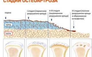 Первичный генерализованный остеоартроз