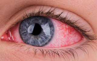Красные глаза причины и лечение