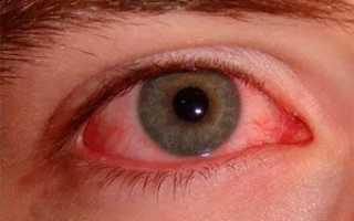 Ожог роговицы глаза лечение