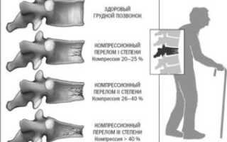 Что такое компрессионный перелом