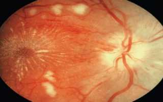 Ангиодистония сетчатки что это такое