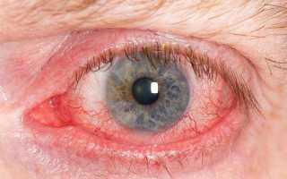 Покраснение белка глаза причины