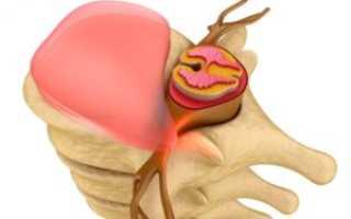 Протрузия грудного отдела позвоночника