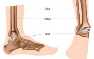 Реабилитация голеностопа после перелома