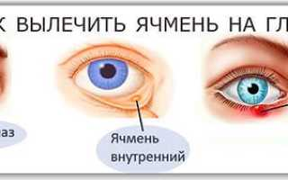От чего бывает ячмень на глазу
