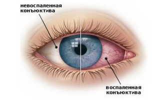 Почему глаза краснеют