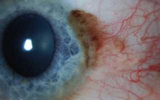 Рак глаза первые симптомы
