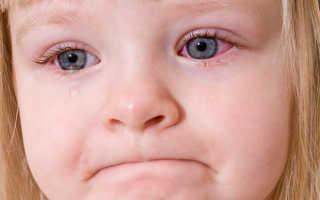 Температура и красные глаза у ребенка