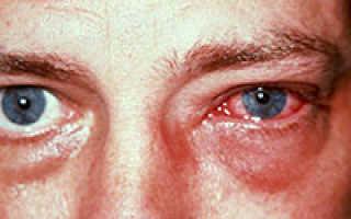 Средства от аллергии на глазах