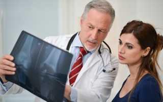 Остеопороз что это такое как лечить