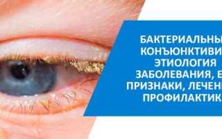Бактериальный конъюнктивит симптомы