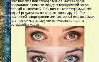 Гетерохромия глаз как заболеть