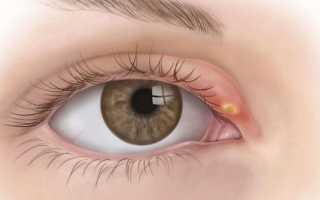 Печечмень на глазу чем лечить
