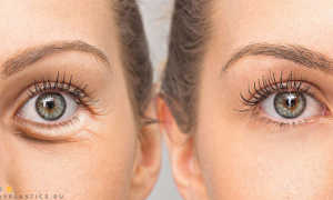 Убрать мешки под глазами хирургически