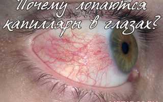 Полопались капилляры в глазу