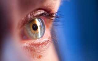 Дисцизия вторичной катаракты