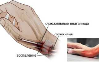 Тендовагинит лучезапястного сустава лечение