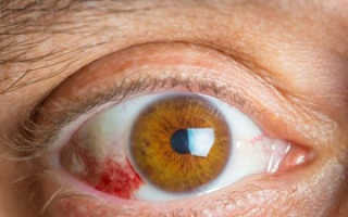 Ангиопатия сетчатки глаза что это такое у взрослых