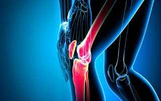 Хруст в коленях при сгибании и разгибании лечение