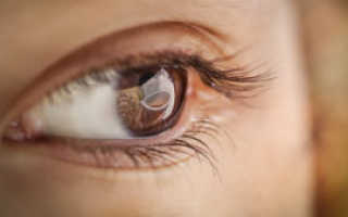 Блестят глаза причины