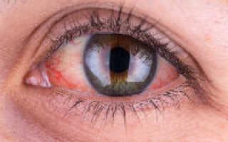 Сосуды в глазах красные у ребенка
