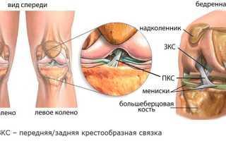 Повреждение крестообразной связки