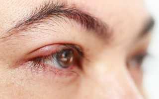Болит глаз под верхним веком больно нажимать