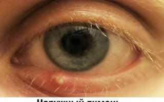 Ячмень на глазу при беременности