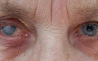 Что такое бельмо на глазу