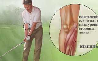 Болит рука в локте с внутренней стороны