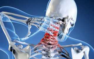 Упражнения при протрузии шейного отдела позвоночника