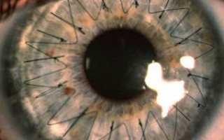 Пересадка роговицы глаза