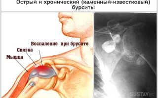 Опухоль локтевого сустава