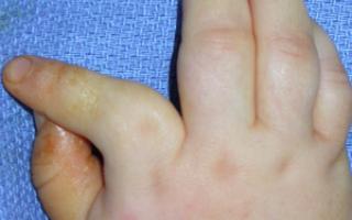 Искривление пальцев рук