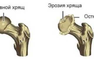 Субхондральный склероз тазобедренного сустава