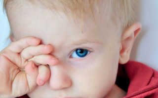 Глаз чешется у ребенка